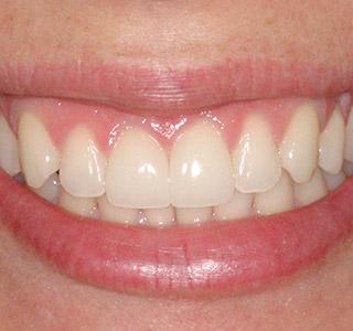 After Smile Makeover in Winnipeg, MB by Dr. Doug McDermid of Lakewood Dental Centre
