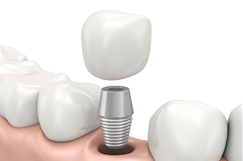 Explore Your Options For Dental Implants