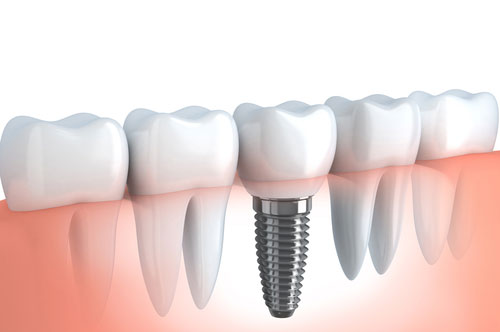 Are Dental Implants The Right Solutions For You? [QUIZ]