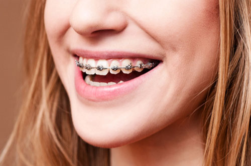 Orthodontics Can Really Change How You See Your Smile